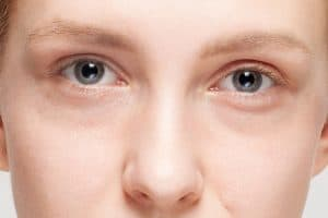 dark circles under eyes puffiness eye bags