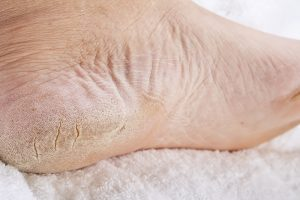 Dry cracked feet