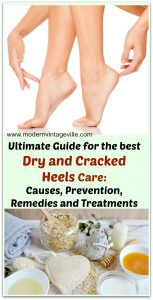 Ultimate guide to the best dry cracked heels care