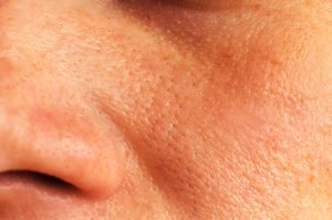 Skin care routine for oily skin enlarged pores