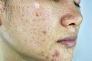diy masks for oily skin