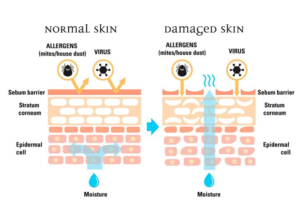 protective skin barrier